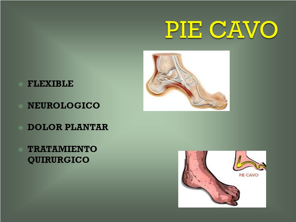 PIE CAVO FLEXIBLE NEUROLOGICO DOLOR PLANTAR TRATAMIENTO QUIRURGICO