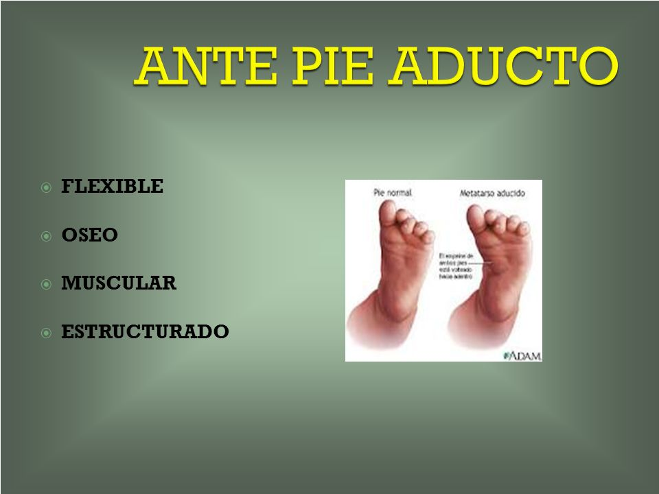 ANTE PIE ADUCTO FLEXIBLE OSEO MUSCULAR ESTRUCTURADO