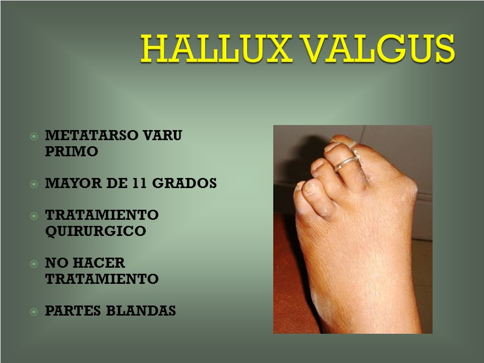 HALLUX VALGUS METATARSO VARU PRIMO MAYOR DE 11 GRADOS