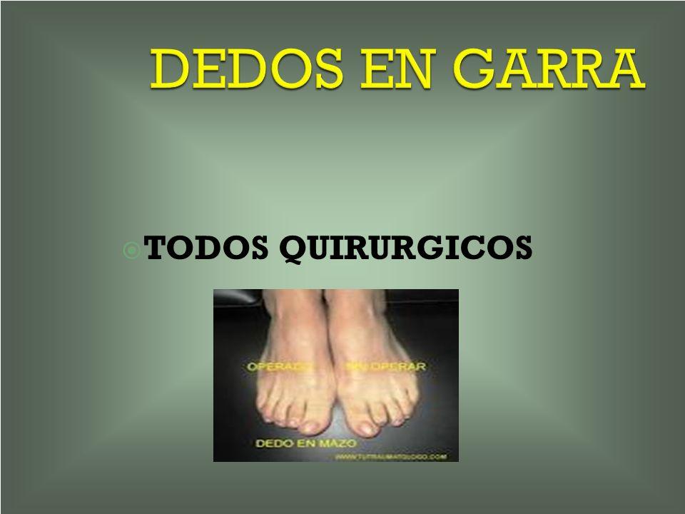 DEDOS EN GARRA TODOS QUIRURGICOS