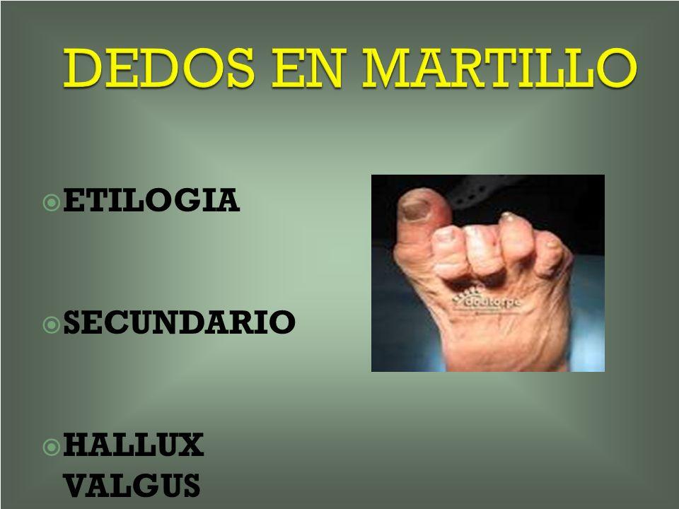 DEDOS EN MARTILLO ETILOGIA SECUNDARIO HALLUX VALGUS