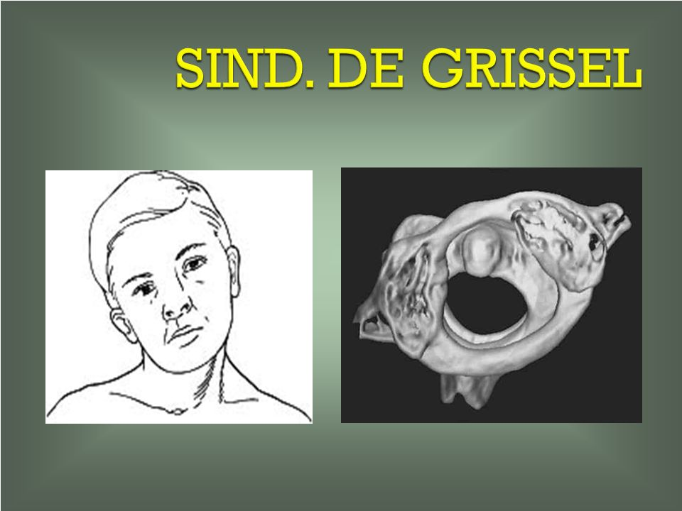 SIND. DE GRISSEL