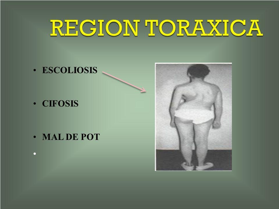 REGION TORAXICA ESCOLIOSIS CIFOSIS MAL DE POT