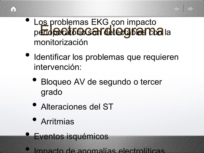 Electrocardiograma Los problemas EKG con impacto perioperatorio son detectables con la monitorización.