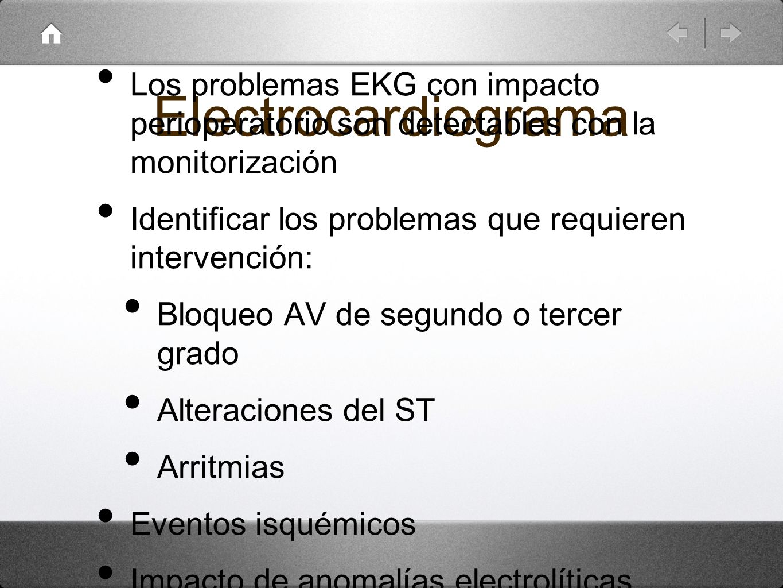 ElectrocardiogramaLos problemas EKG con impacto perioperatorio son detectables con la monitorización.