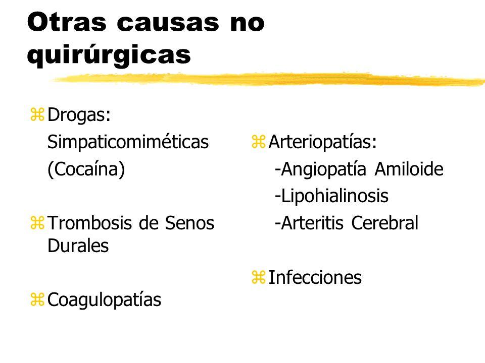 Otras causas no quirúrgicas