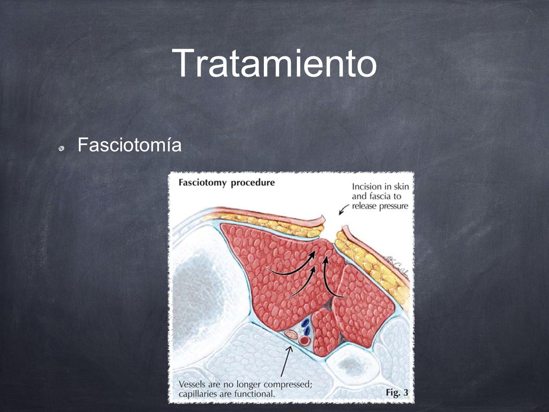Tratamiento Fasciotomía