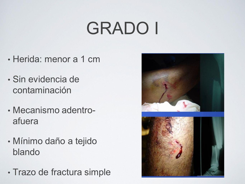 GRADO I Herida: menor a 1 cm Sin evidencia de contaminación