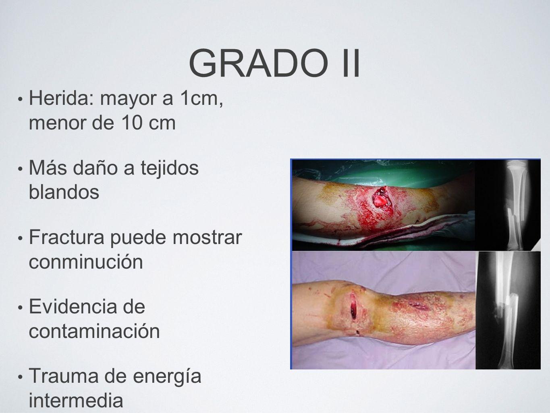 GRADO II Herida: mayor a 1cm, menor de 10 cm