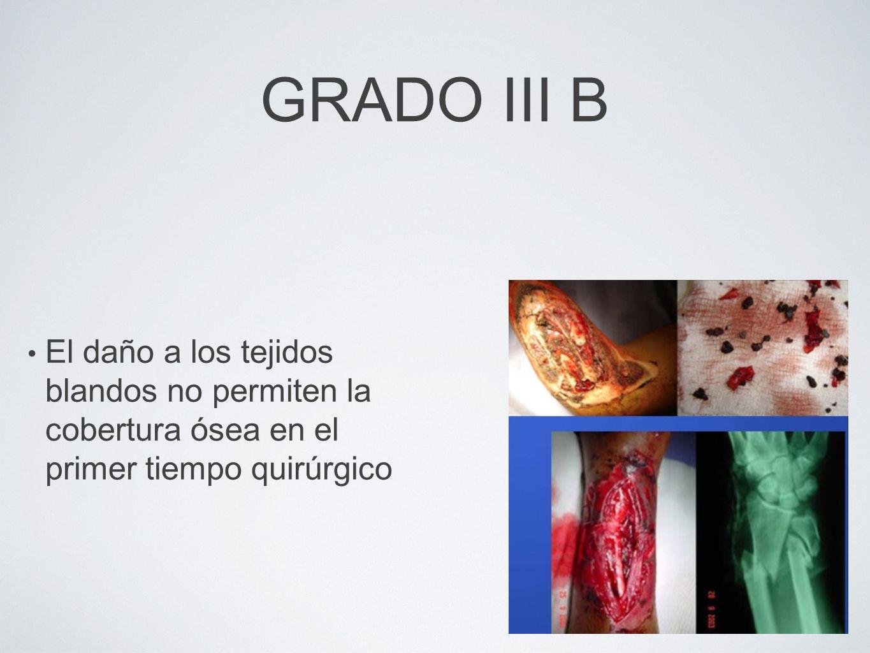 GRADO III B El daño a los tejidos blandos no permiten la cobertura ósea en el primer tiempo quirúrgico.