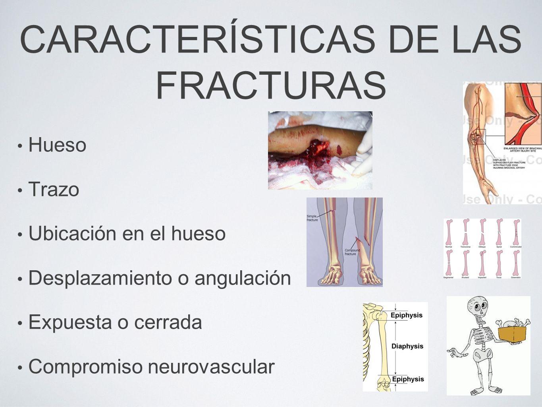 CARACTERÍSTICAS DE LAS FRACTURAS