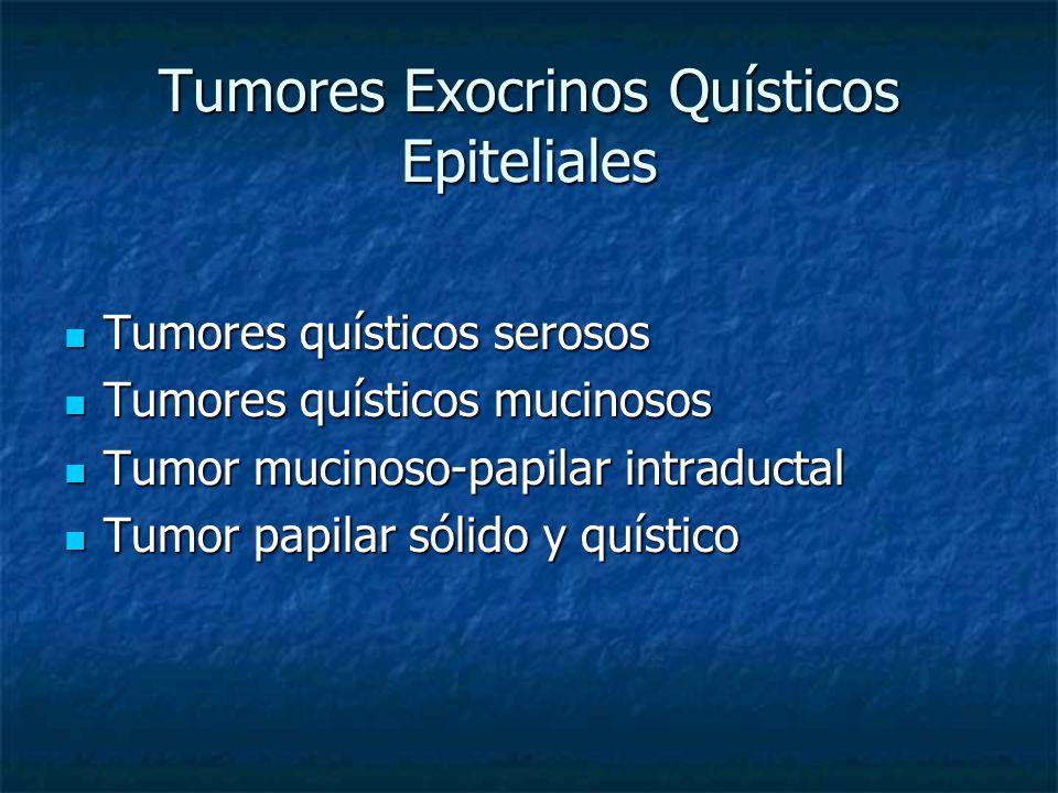 Tumores Exocrinos Quísticos Epiteliales