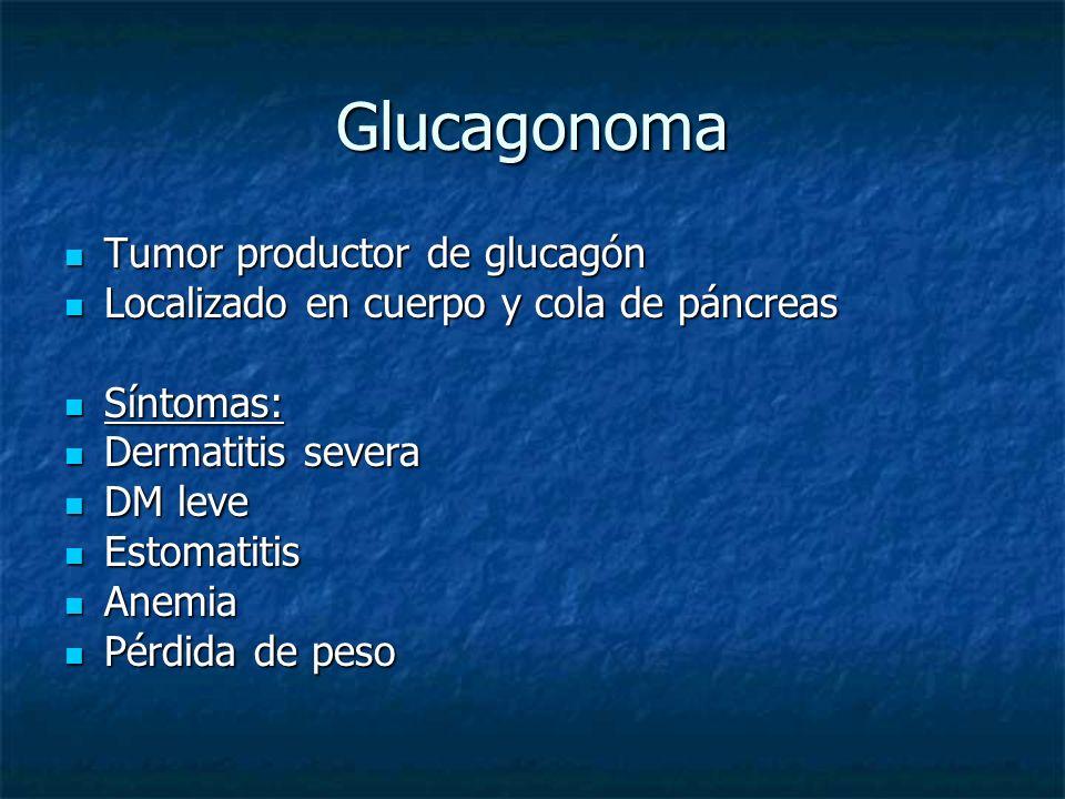 Glucagonoma Tumor productor de glucagón