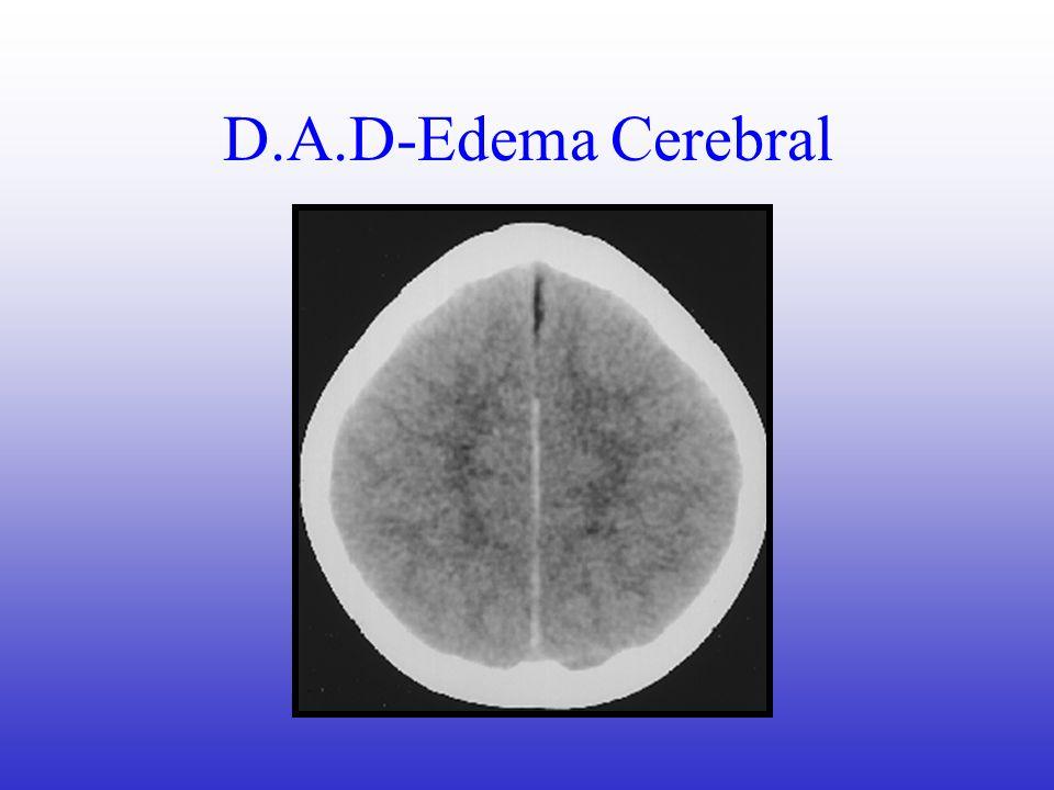 D.A.D-Edema Cerebral