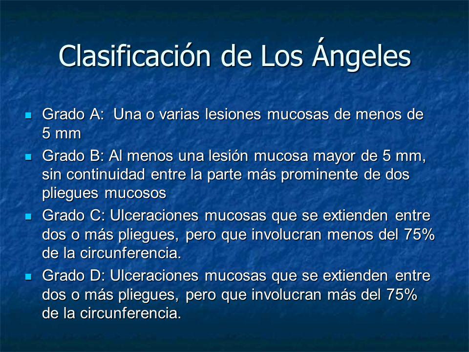 Clasificación de Los Ángeles