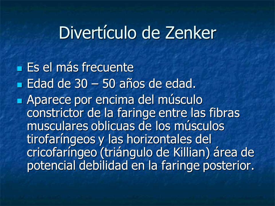 Divertículo de Zenker Es el más frecuente