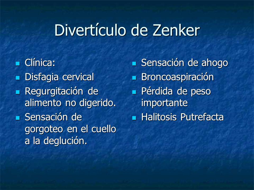 Divertículo de Zenker Clínica: Disfagia cervical