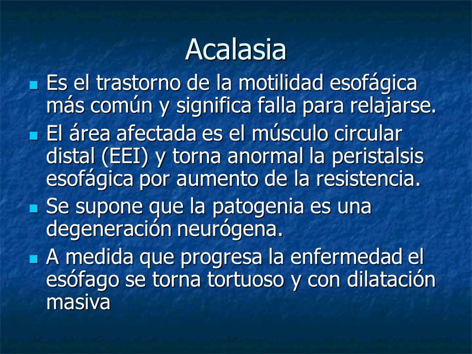 Acalasia Es el trastorno de la motilidad esofágica más común y significa falla para relajarse.