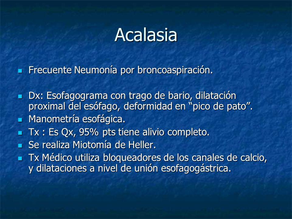Acalasia Frecuente Neumonía por broncoaspiración.