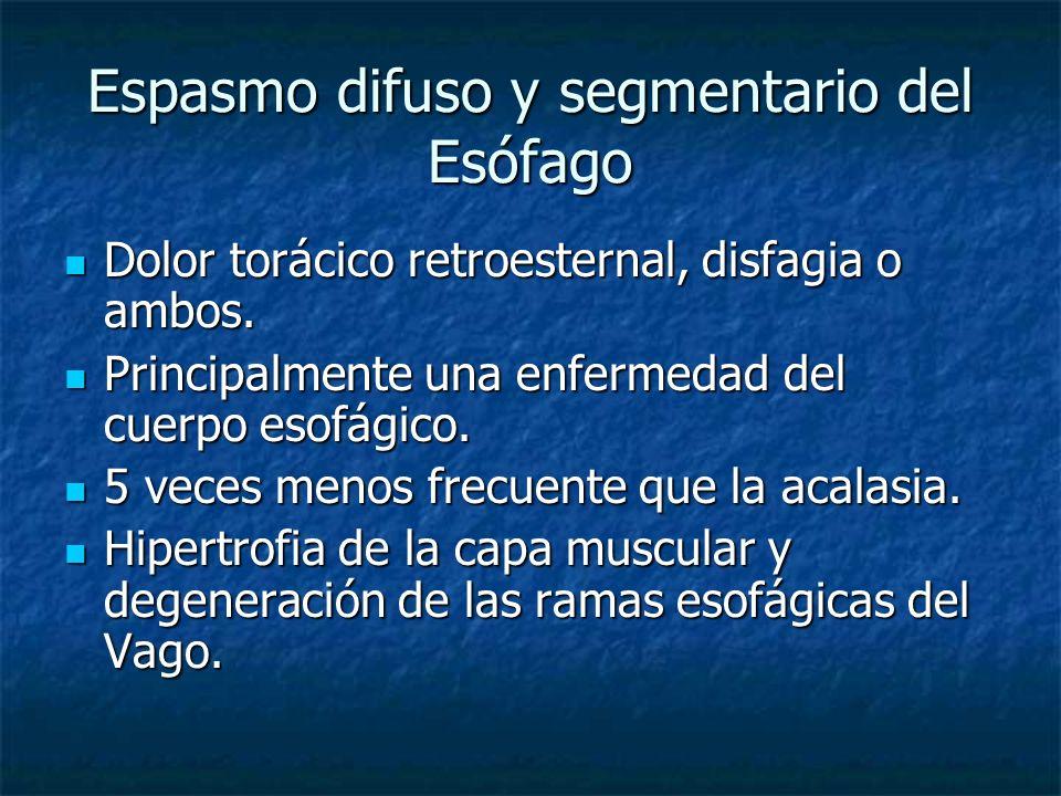 Espasmo difuso y segmentario del Esófago