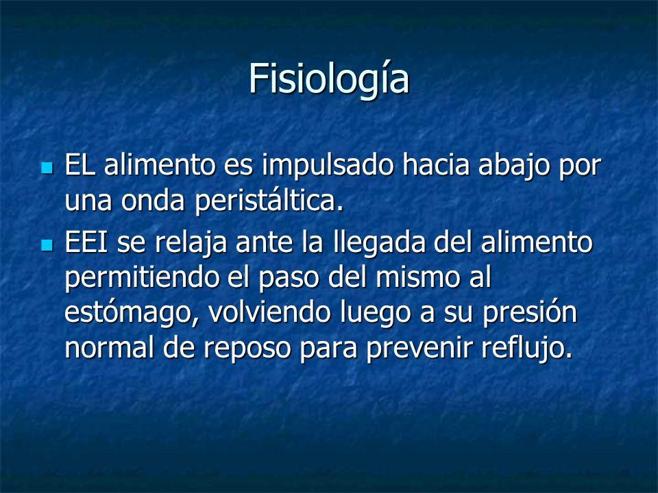 Fisiología EL alimento es impulsado hacia abajo por una onda peristáltica.