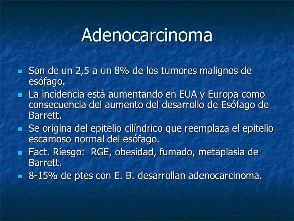 Adenocarcinoma Son de un 2,5 a un 8% de los tumores malignos de esófago.
