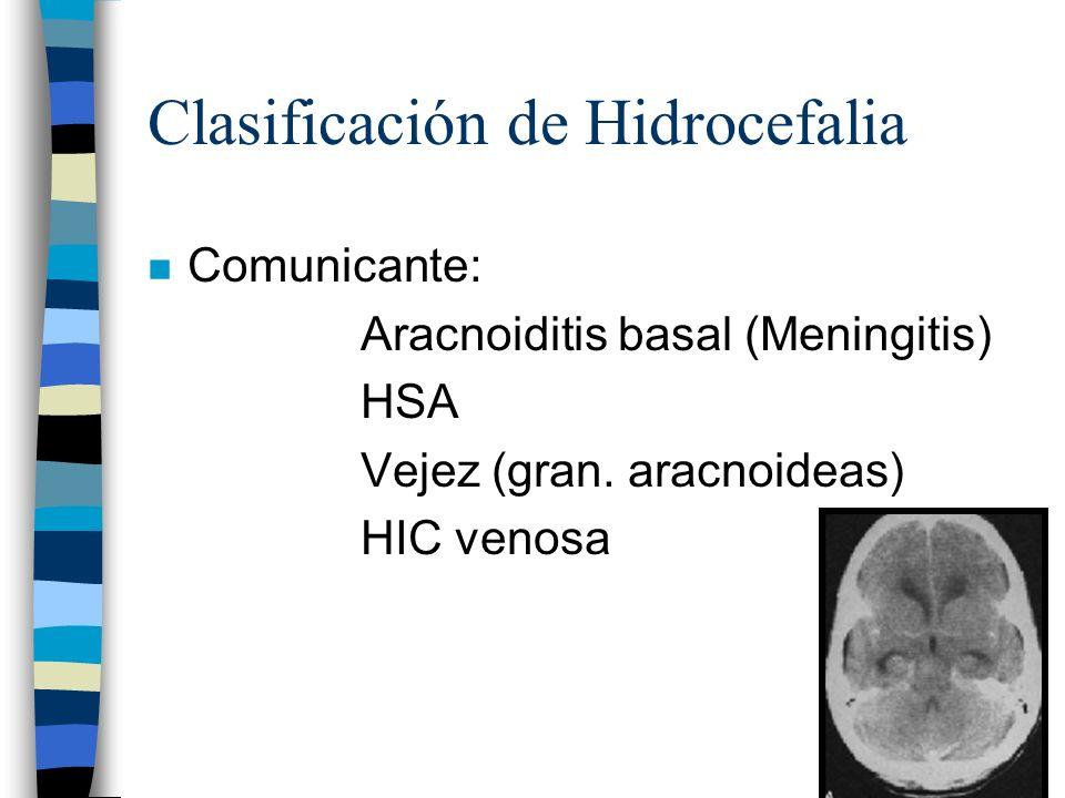 Clasificación de Hidrocefalia