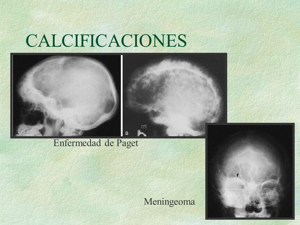 CALCIFICACIONES Enfermedad de Paget Meningeoma