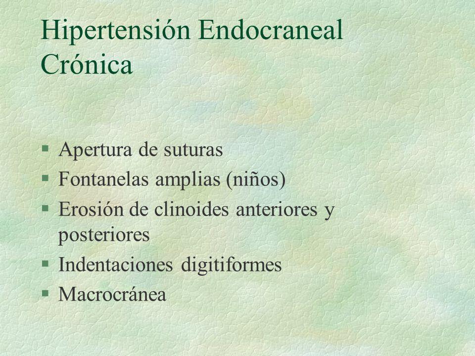 Hipertensión Endocraneal Crónica