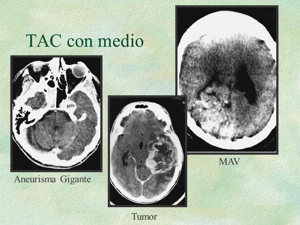 TAC con medio MAV Aneurisma Gigante Tumor