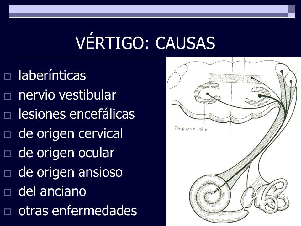 VÉRTIGO: CAUSAS laberínticas nervio vestibular lesiones encefálicas