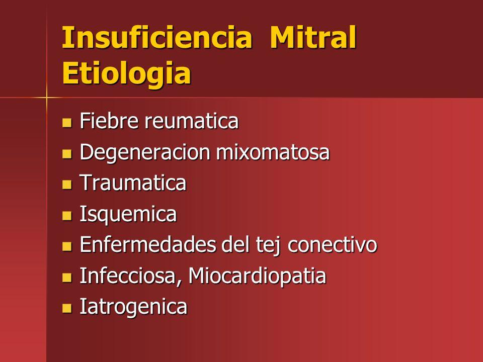 Insuficiencia Mitral Etiologia