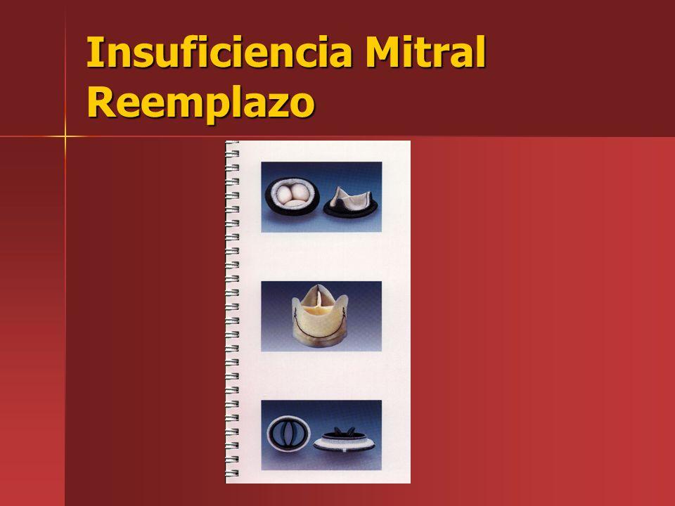 Insuficiencia Mitral Reemplazo