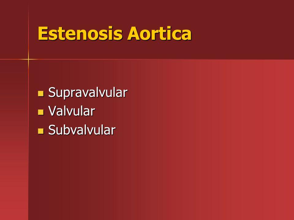 Estenosis Aortica Supravalvular Valvular Subvalvular