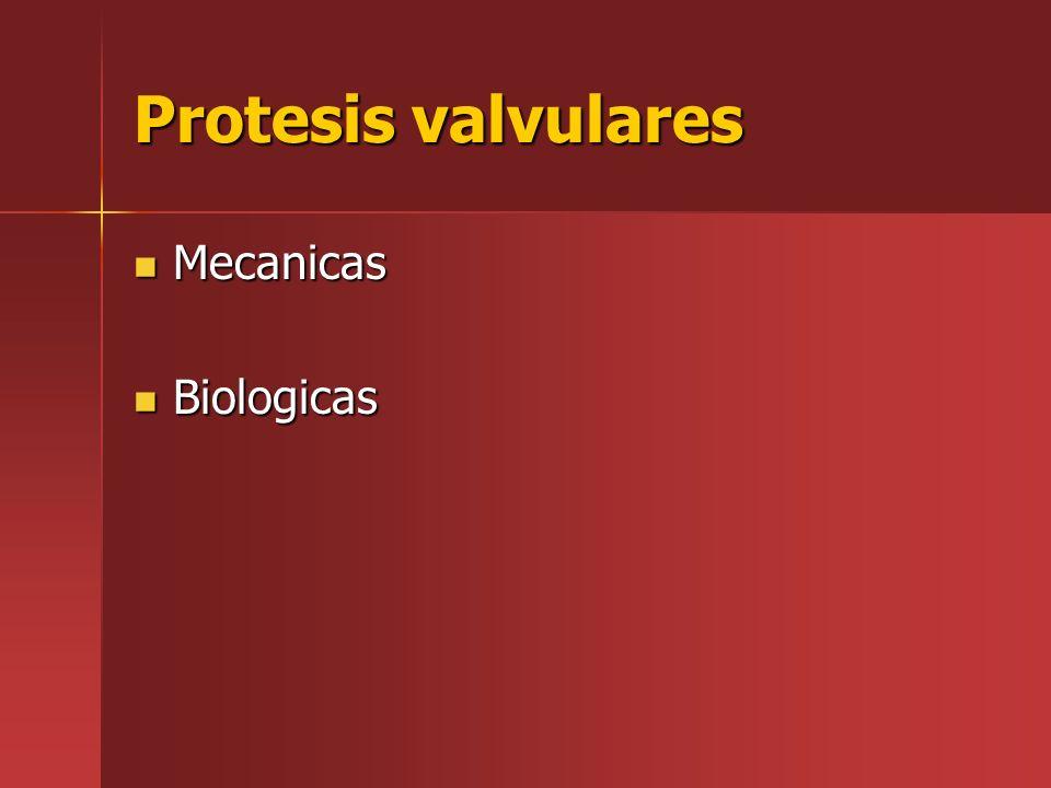 Protesis valvulares Mecanicas Biologicas