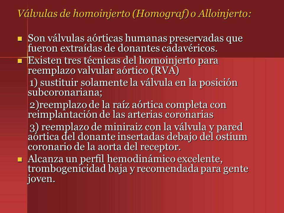 Válvulas de homoinjerto (Homograf) o Alloinjerto: