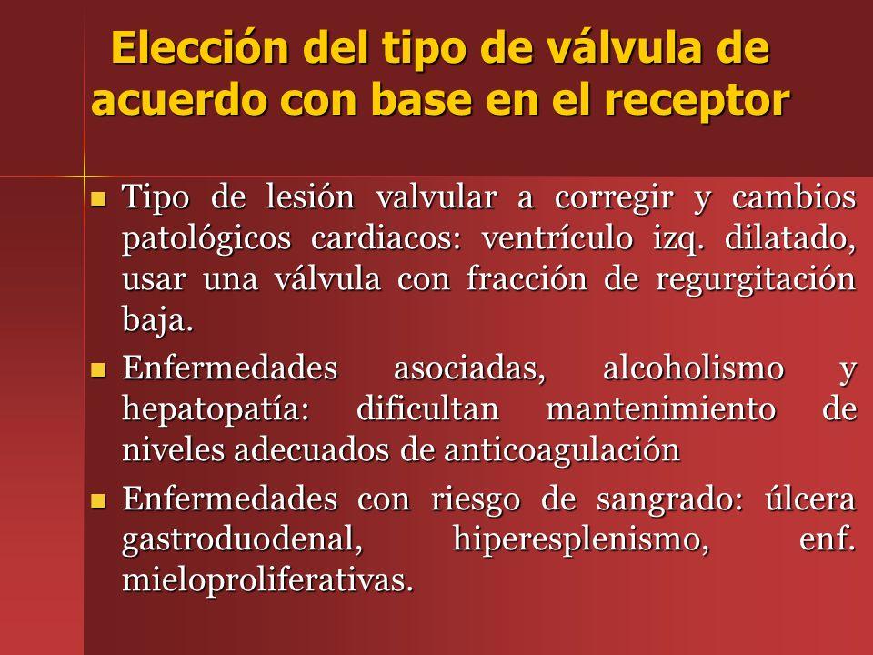 Elección del tipo de válvula de acuerdo con base en el receptor