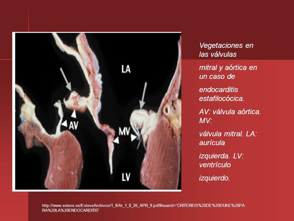 Vegetaciones en las válvulas mitral y aórtica en un caso de