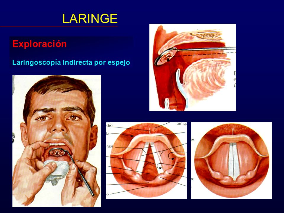 LARINGE Exploración Laringoscopía indirecta por espejo