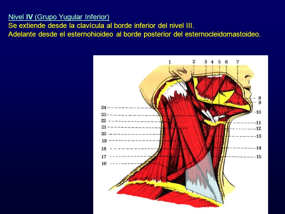 Nivel IV (Grupo Yugular Inferior)