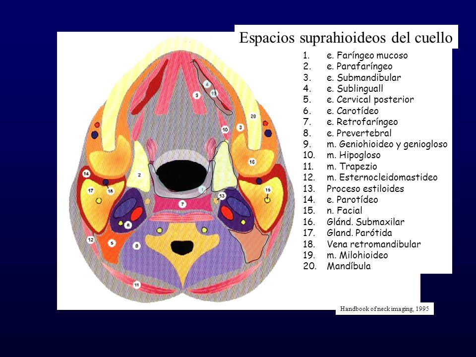 Espacios suprahioideos del cuello