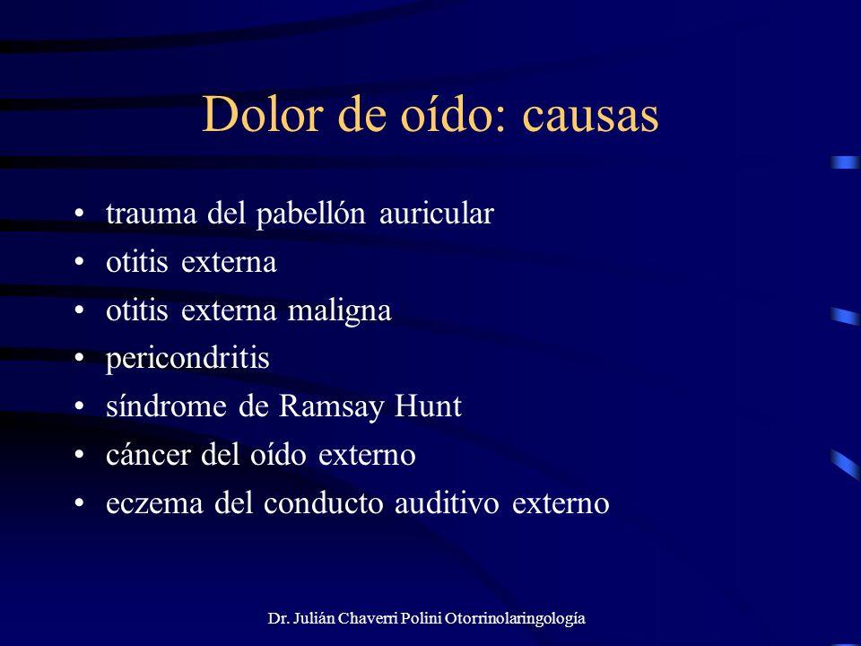 Dr. Julián Chaverri Polini Otorrinolaringología