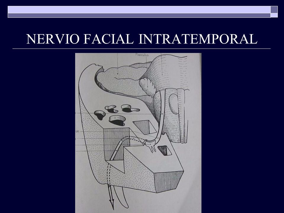NERVIO FACIAL INTRATEMPORAL