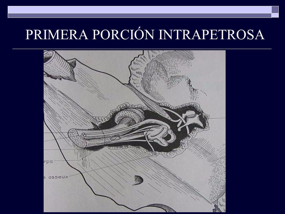 PRIMERA PORCIÓN INTRAPETROSA