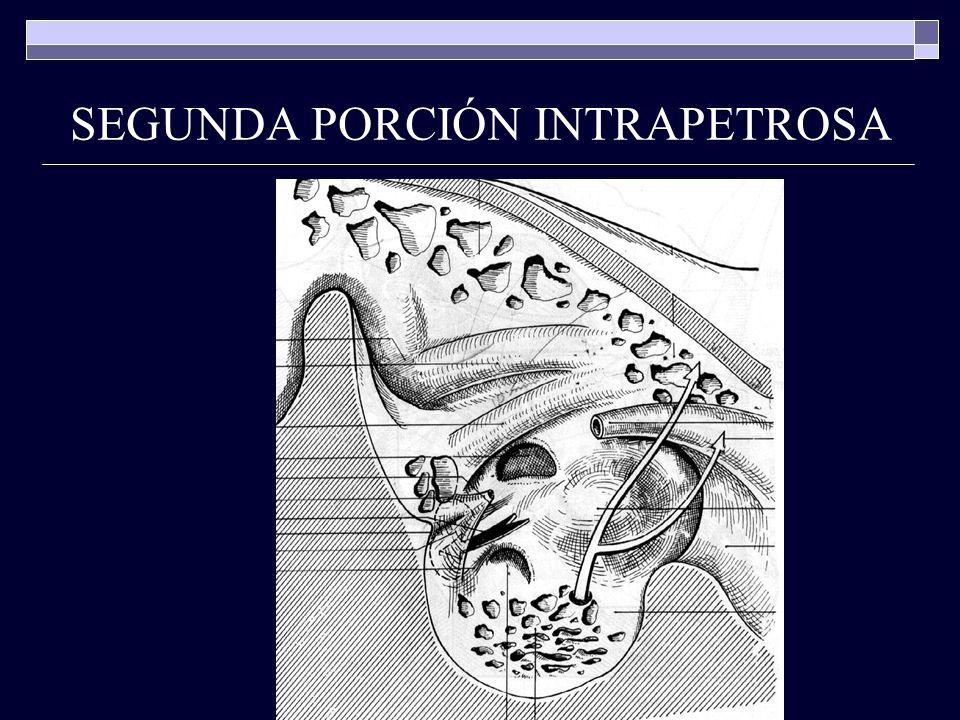 SEGUNDA PORCIÓN INTRAPETROSA