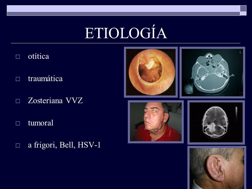 ETIOLOGÍA otítica traumática Zosteriana VVZ tumoral