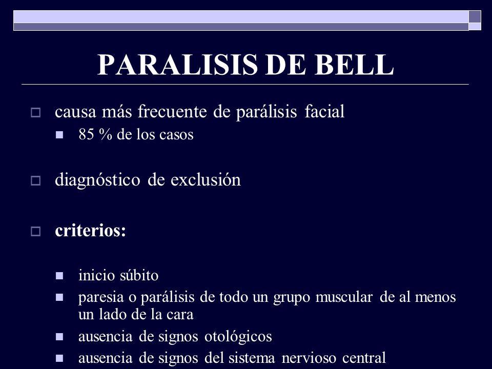 PARALISIS DE BELL causa más frecuente de parálisis facial