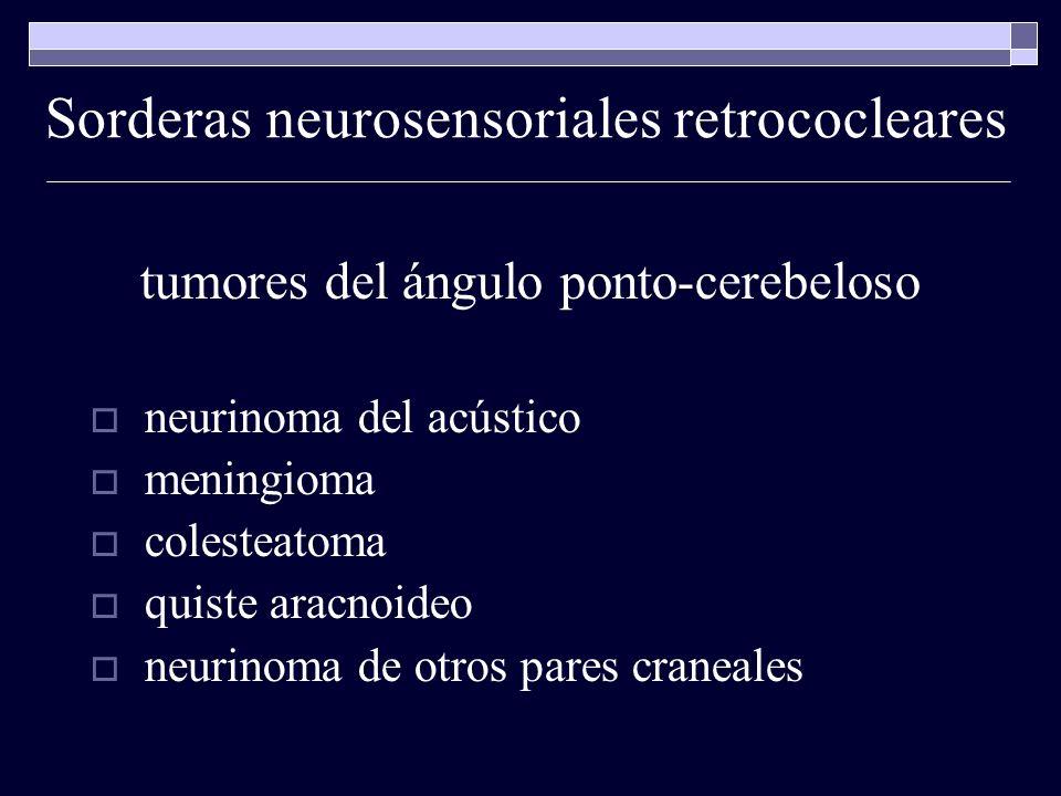 Sorderas neurosensoriales retrococleares