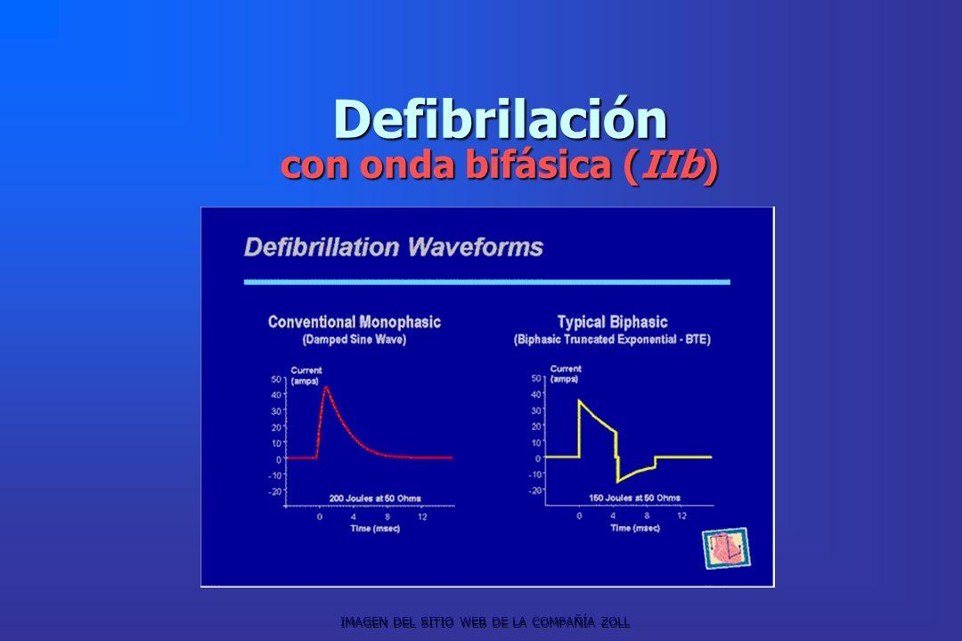 Defibrilación con onda bifásica (IIb)