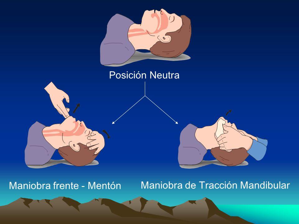 Posición Neutra Maniobra frente - Mentón Maniobra de Tracción Mandibular